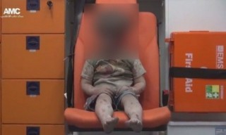 叙利亚男童空袭受伤不掉泪画面震动了世界