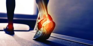健康饮食或锻炼,哪里对维持骨骼健康更有效?