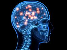 深知多发性硬化症的五种初步症状